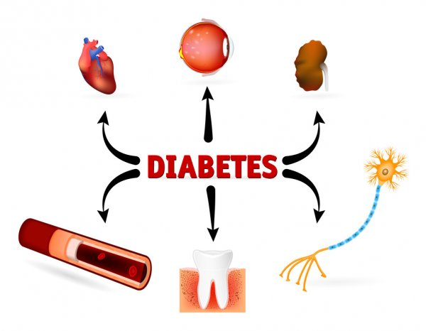 diabetes yazısı ve diyabetten etkilenen organlar